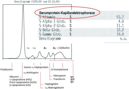2 1 labordiagnostik 2 1 1 serumprotein elektrophorese spe. Black Bedroom Furniture Sets. Home Design Ideas