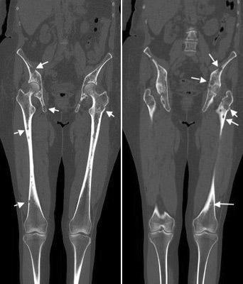 3 Radiologische Diagnostik des multiplen Myeloms: 3.3 Radiologisch ...